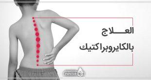العلاج بالكايروبراكتيك-