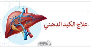علاج الكبد الدهني