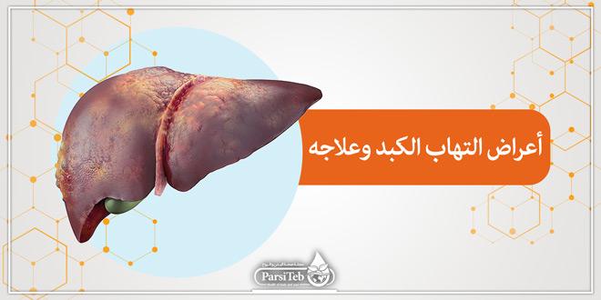 أعراض التهاب الكبد وعلاجه بارسی طب