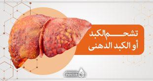 تشحم الكبد أو الكبد الدهنى