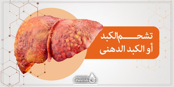 تشحم الكبد أو الكبد الدهني