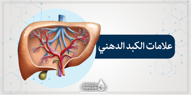 علامات الكبد الدهني