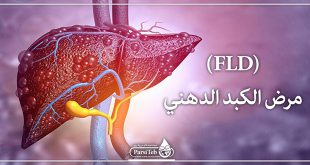 مرض الكبد الدهني (FLD)