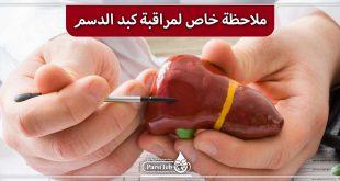 ملاحظة خاصة لمراقبة الكبد الدسم