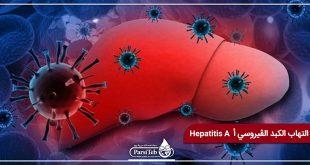 التهاب الكبد الڤيروسي أ Hepatitis A
