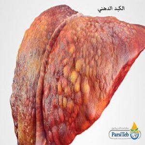 علاج الكبد الدهني-علاج دهون الكبد-علاج تشحم الكبد- علاج تشمع الكبد-علاج تدهن الكبد