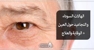 الهالات السوداء حول العيون