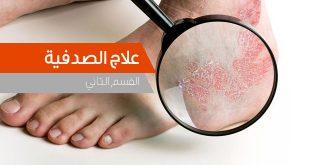 علاج الصدفیة في الطب الحدیث والطب الشعبي - المقدم فی طب البدیل و طب الاعشاب