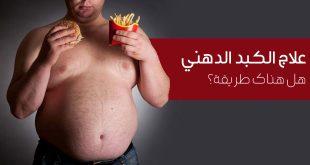 هل هناك طریقة لعلاج مرض الکبد الدهني ؟