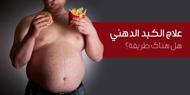 مرض الکبد الدهني