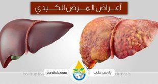 أعراض تدل علی مرض کبدي