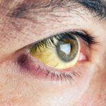 اصفرار المنطقة البيضاء في العين