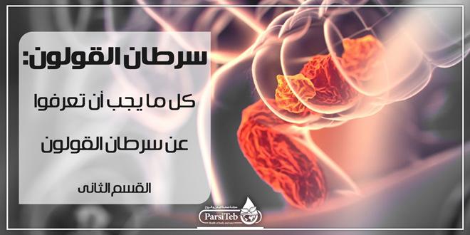 سرطان القولون من الوقاية وحتى العلاج