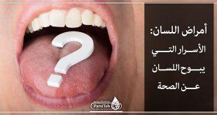 أمراض اللسان