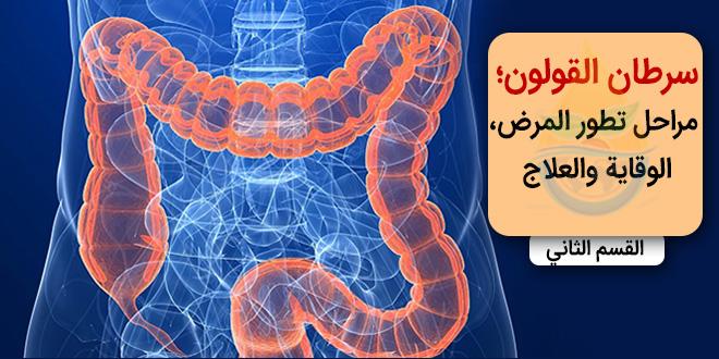 سرطان القولون؛ مراحل تطور المرض، الوقاية والعلاج-القسم الثاني
