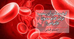 فرط تركيز الدم القسم الثاني المضاعفات