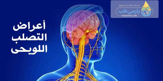 أعراض التصلب اللويحي