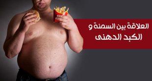 العلاقة بين السمنة والكبد الدهني