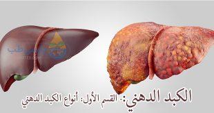 الكبد الدهني:- القسم الأول: أنواع الكبد الدهني