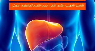 الكبد الدهني- القسم الثاني: أسباب الإصابة بالكبد الدهني
