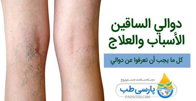 دوالي الساقين ، الأسباب و طرق العلاج