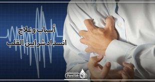 أسباب وعلاج انسداد شرايين القلب