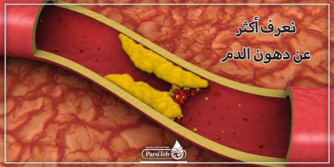 نعرف أكثر عن دهون الدم