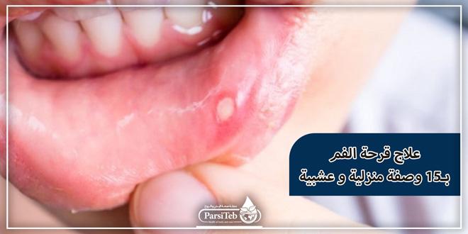 علاج قرحة الفم ب15 وصفة منزلية وعشبية