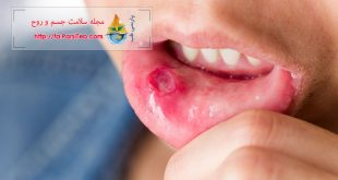 علاج قرحة الفم بـ۱۵ وصفة منزلیة و عشبیة