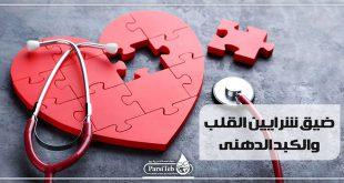ضيق شرايين القلب والكبد الدهني