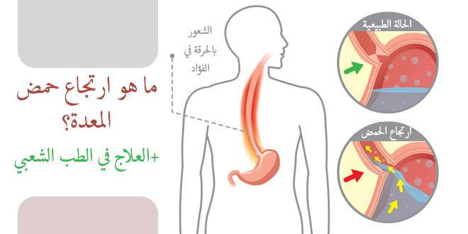 ما هو ارتجاع حمض المعدة؟+العلاج في الطب الشعبي