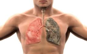 أسباب البخر الفموي المرضية- الرئة