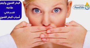 البخر الفموي وكيفية علاجه؛ القسم الثاني:أسباب البخر الفموي