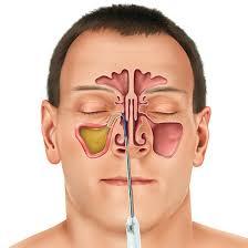 أسباب البخر الفموي المرضية- التهاب الجيوب الأنفية
