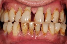 أسباب البخر الفموي-مشاكل الأسنان