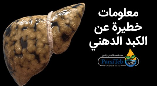 معلومات خطيرة عن الكبد الدهني