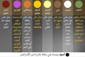 20مفتاحا لصحةالرجال-لون البول
