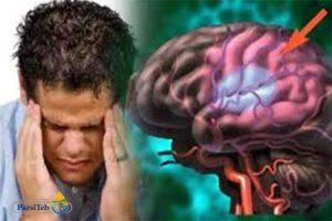 10 عادات سيئة تضر الدماغ- قلة النوم