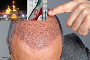 زراعة الشعر في إيران-تكاليف زراعة الشعر في إيران