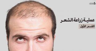 عملية زراعة الشعر القسم الأول