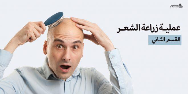 عملية زراعة الشعر-تكاليف عملية زراعة الشعر