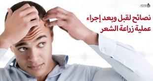 نصائح لقبل وبعد الخضوع لعملية زراعة الشعر
