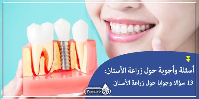 أسئلة وأجوبة حول زراعة الأسنان