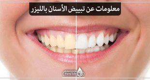 معلومات عن تبييض الأسنان بالليزر