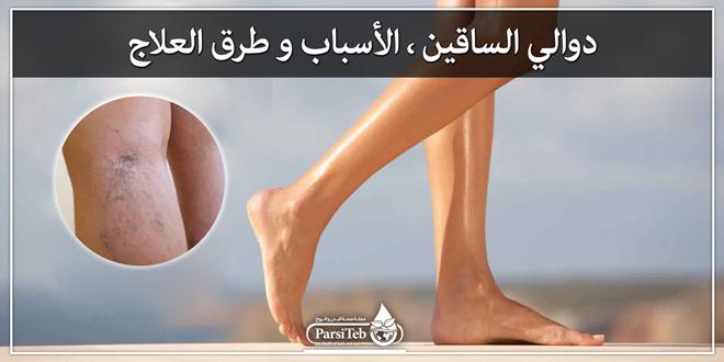 دوالي الساقين؛ الأسباب وطرق العلاج