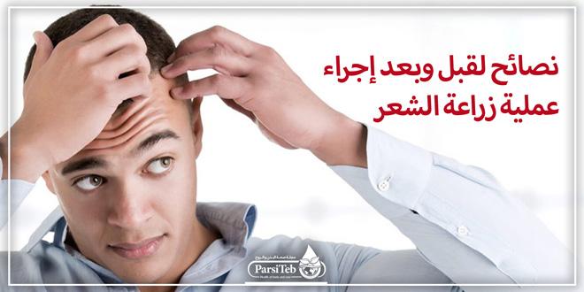 نصائح لقبل وبعد إجراء عملية زراعة الشعر