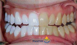 تبييض الأسنان-أسباب تغيير لون الأسنان