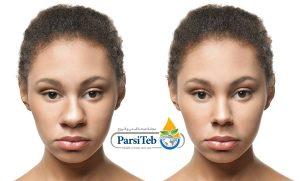 عملية تجميل الأنف-السن المناسب لإجراء عملية تجميل الأنف