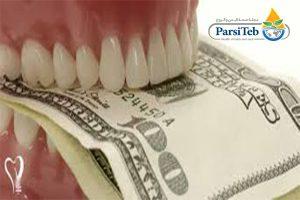 تكاليف عملية زراعة الأسنان