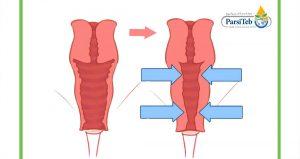 قبل وبعد عملية تجميل المهبل-مخاطر ومضاعفات عملية تجميل المهبل